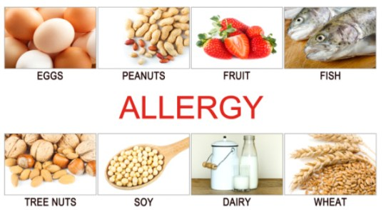 common allergies in kids