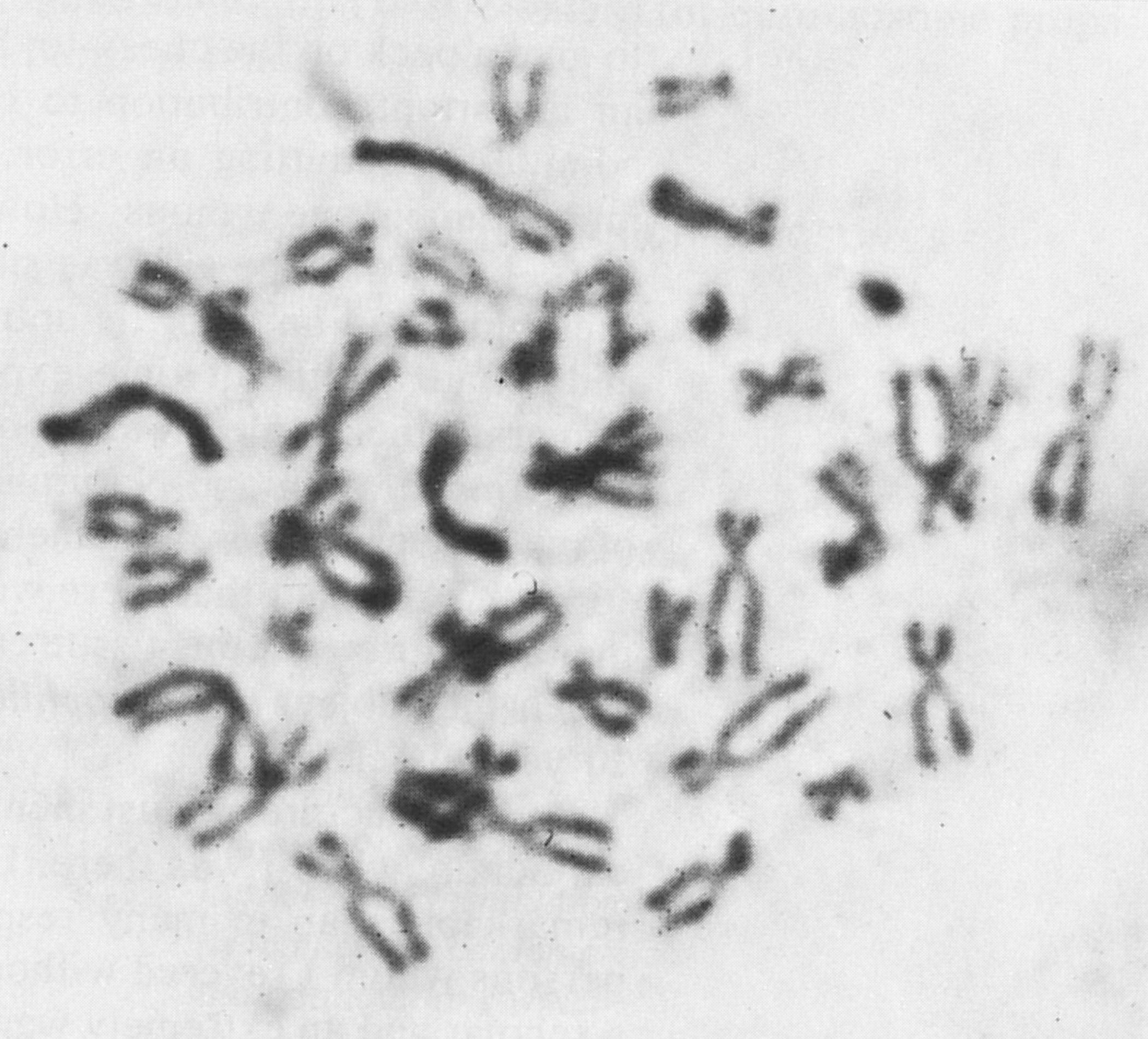 Human Karyotypes