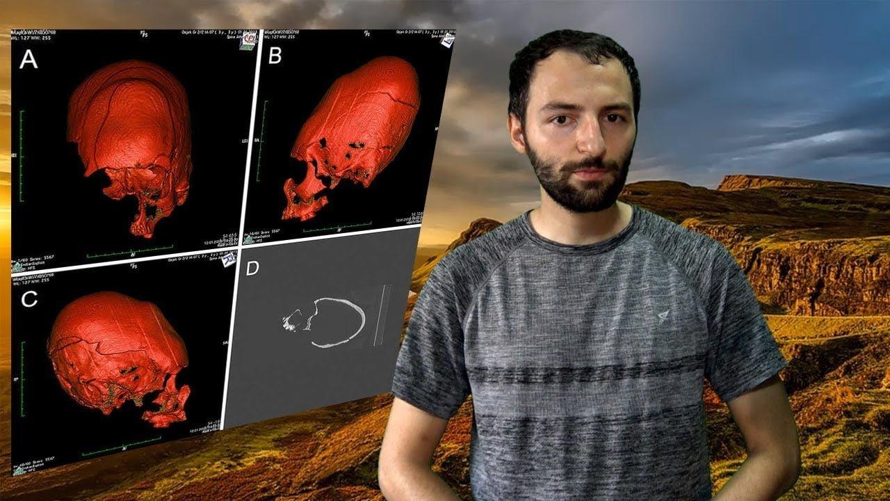 El misterio de los cráneos alargados de Croacia y su relación con Atila