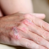 Dermatitis: Pflege für die Haut
