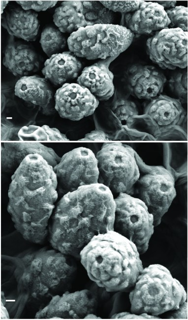 Scanning electron micrographs of the basidiospores of Spongiforma squarepantsii. Note the surface ornamentation and pore at the end of each spore. Scale bar = 1 µm. Photo by Dennis Desjardin.
