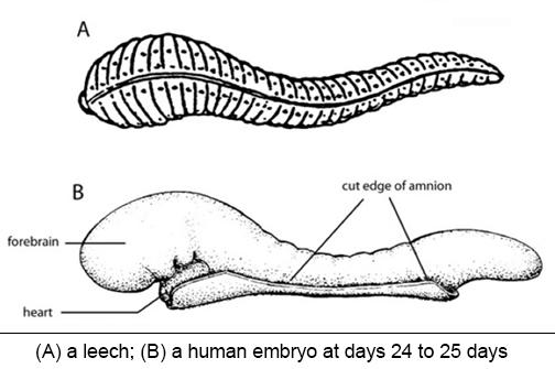 Leech-Human embryo