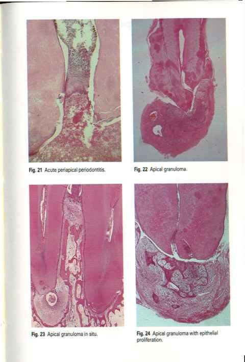 Apical Periodontitis Pleomorphic Adenoma Derick Mussen