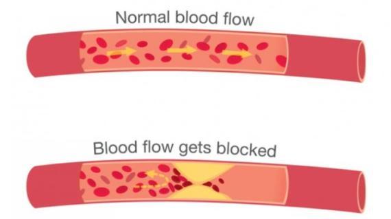 Pantangan, Gejala dan Penyebab Penyakit Kolesterol