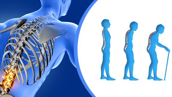 Gejala Osteoporosis dan Penyebab Osteoporosis
