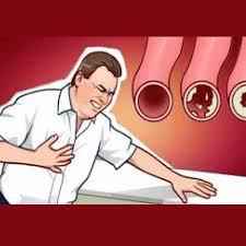 10 Obat Kolesterol Alami bersama Agarillus Herbal