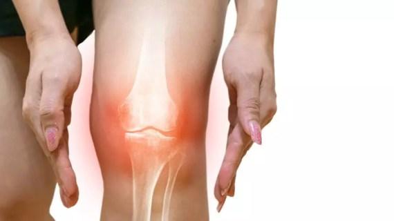 Cara Mudah Sembuh dari Osteoarthritis (Radang Sendi) Tanpa Obat