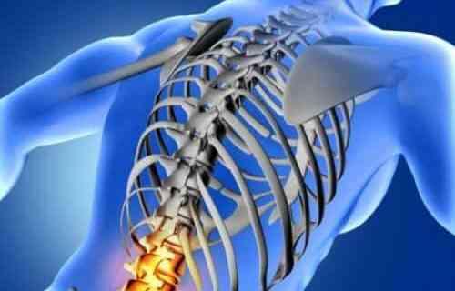 Terapi Agarillus Series Pada Penyakit Osteoporosis