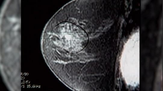 breast cancer_1538522576089.jpg.jpg