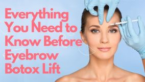 Botox for Eyebrow Lift