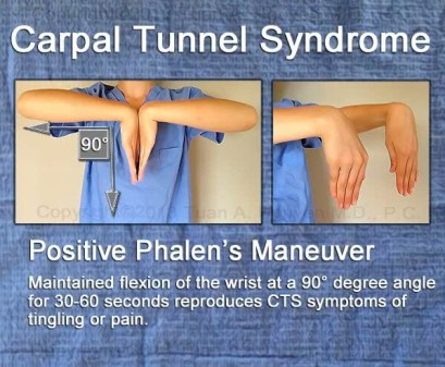 infographic on phalen maneuver for CTS