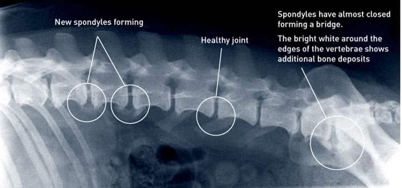 X-ray show healthy spine & spondylosis (bone spur)