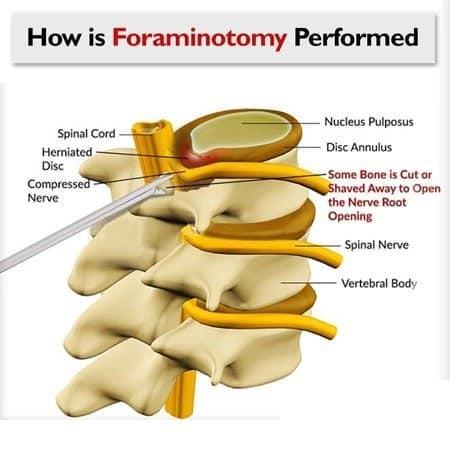 spinal foraminotomy