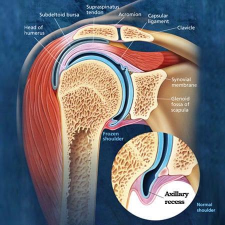 adhesive capsulitis in frozen shoulder