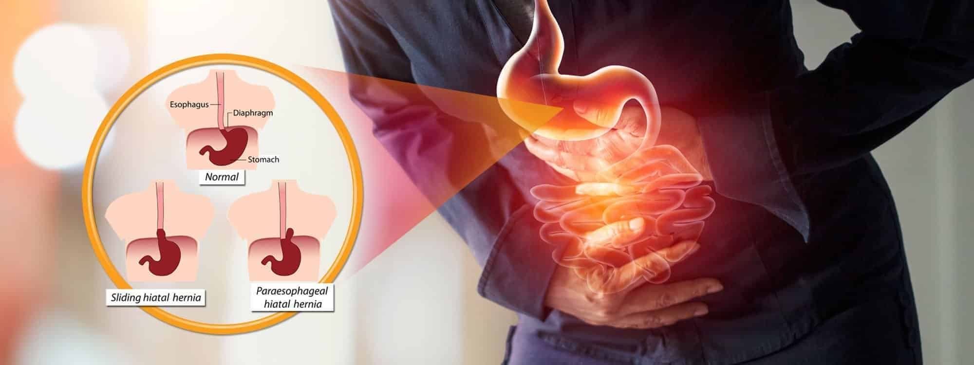 Read more about the article Hiatal Hernia Treatment Through Chiropractic Care