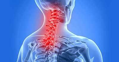 Neck & Upper Back Problems