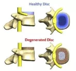 illustration of spinal bones