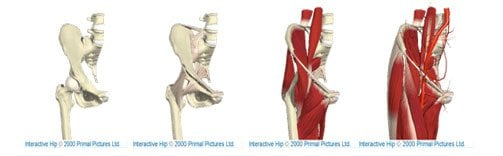 Hip joint, bones & soft tissues shown