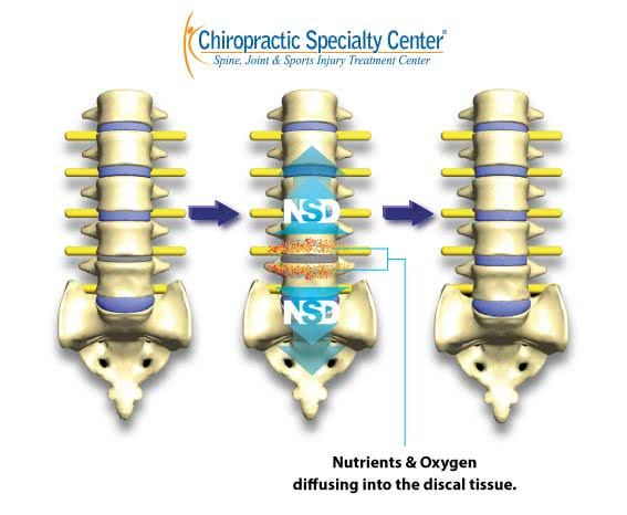 reversal of spinal disc damage