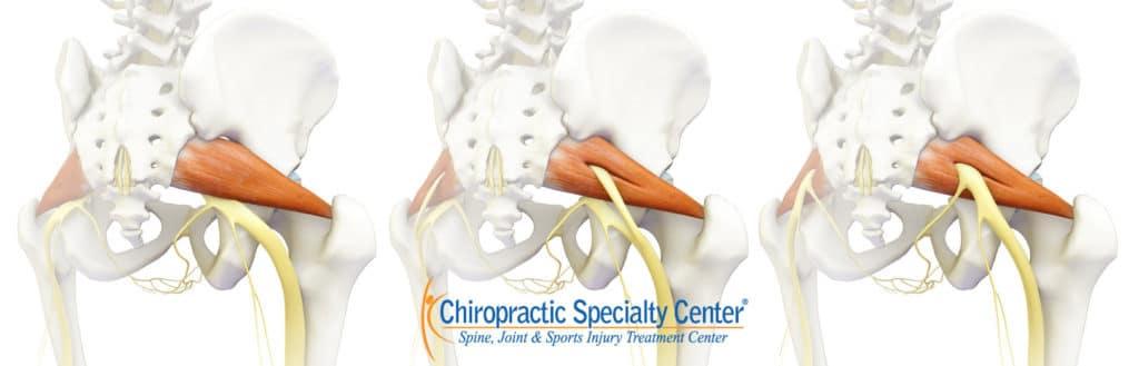 Piriformis syndrome cause of sciatica and leg pain