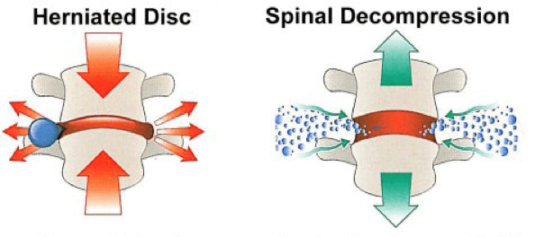 impact of spinal decompression therapy on slipped disc and modi changes shown