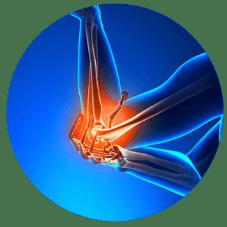illustrating elbow pain