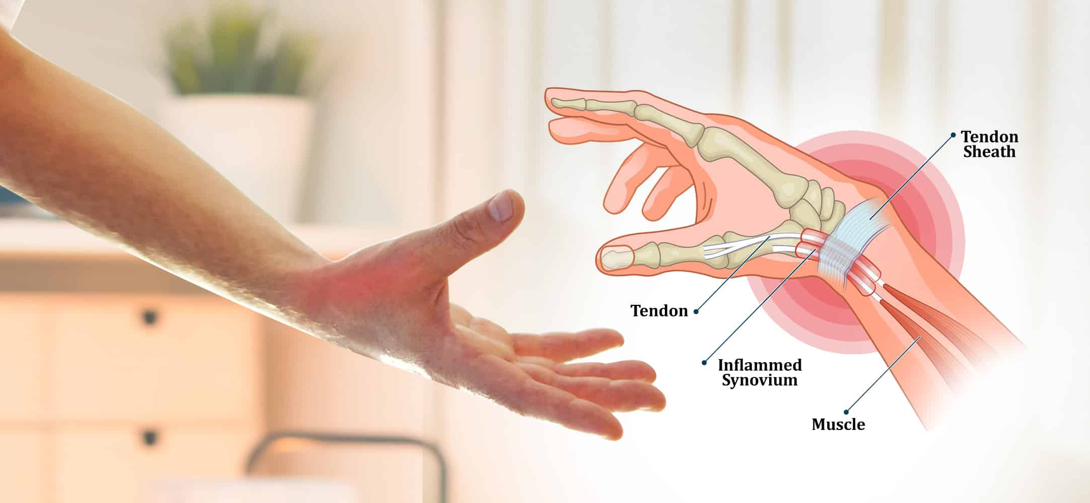 Read more about the article De Quervain's Tenosynovitis Thumb Pain & Painful Wrist