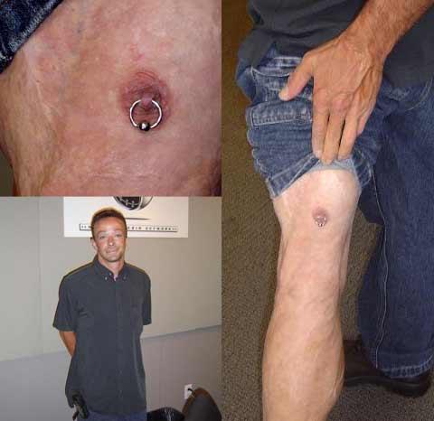 scott-nipple-knee.jpg (19 KB)