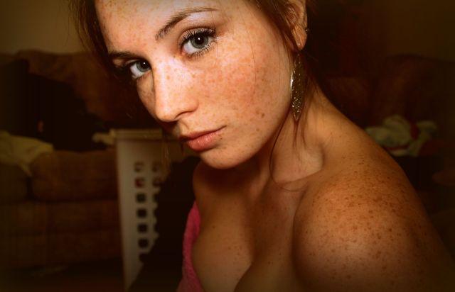 freckle.jpg (186 KB)