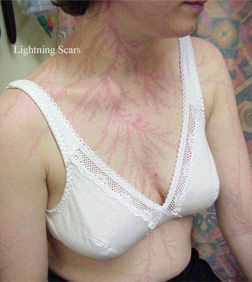 scars.jpg (72 KB)