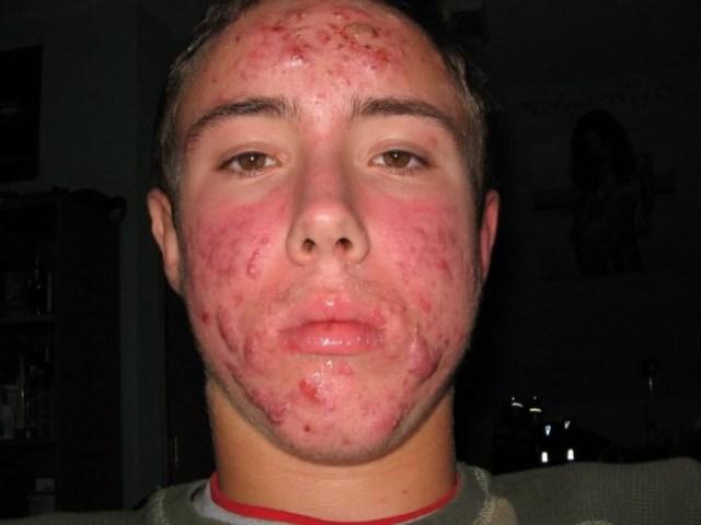 acne.jpg (73 KB)