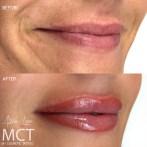 MCT-lipblend-1001