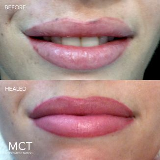 Before, uneven shape and irregular pigment, after full lip tattoo with ombre lip line.