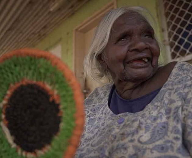 cataracts in aboriginal people