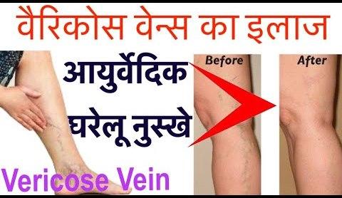 Treatment for disease Varicose Veins