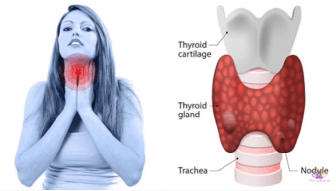 Deficiency Symptoms and Treatment for Vitamin A, B12, and D - Thyroid - images - 2