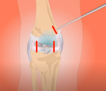 Home Remedies For Knee Pain In Hindi