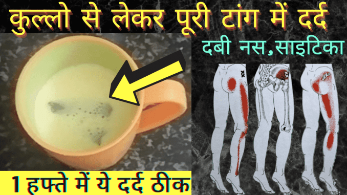 Home remedies for sciatica pain