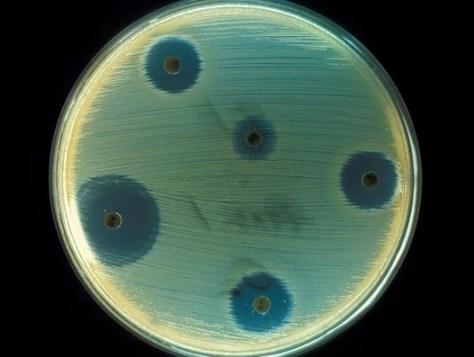 530px-Staphylococcus_aureus_(AB_Test)