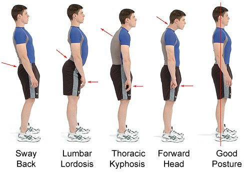 Three Signs That You Have Muscle Imbalance In Your Body
