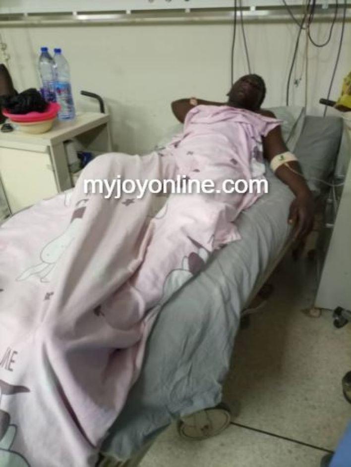 Ejura gunshot survivor has lost one leg after amputation at KATH
