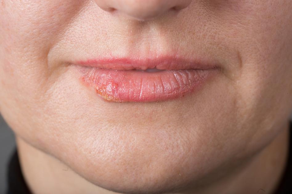 Genital herpes blog