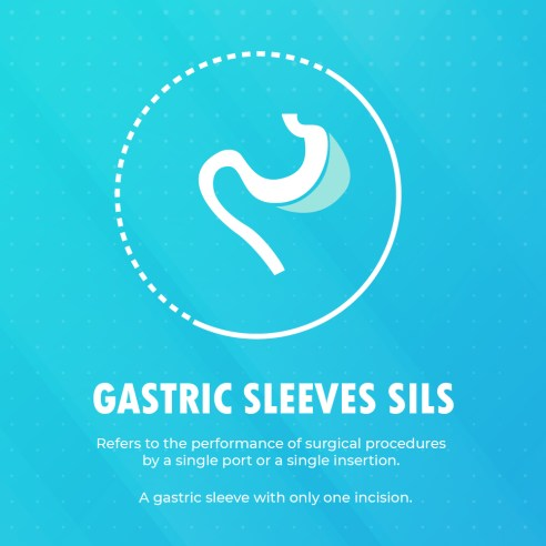 Single Incision Gastric Sleeve