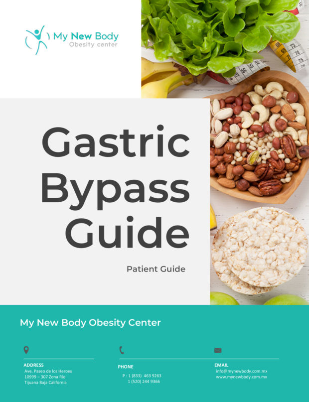 Gastric Bypass Guide