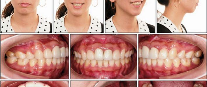 深咬、暴牙與長臉型的矯正,利用骨釘達到改善臉型的效果