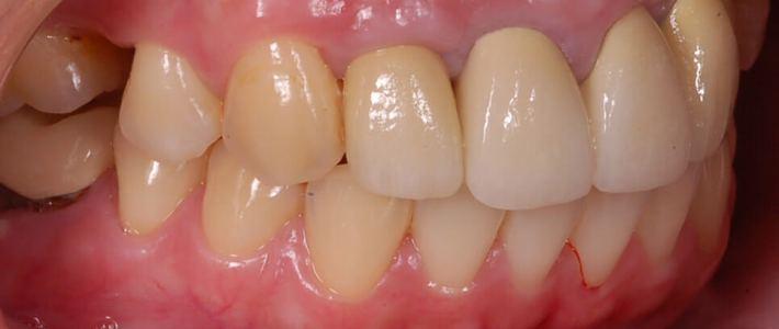 門牙牙套失敗後的植牙重建