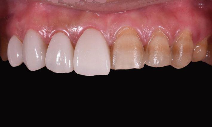 四環黴素牙齒