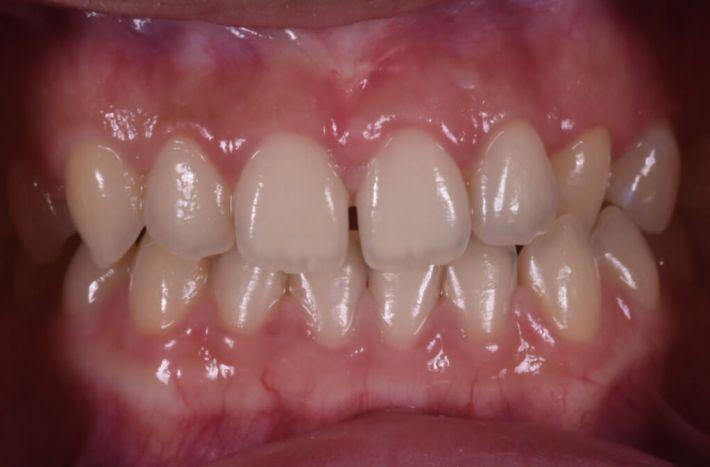 經由水雷射合併牙冠增長術,調整牙齒比例