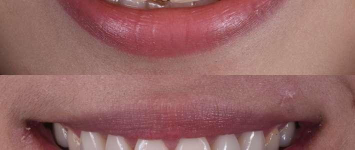 笑起來總是露牙齦!笑齦的原因、診斷與治療分享