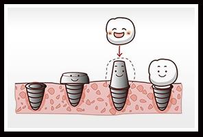植牙流程、時機、注意事項與維護介紹